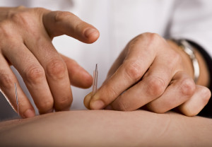 Acupuncturist prepares to tap needle into patients hand