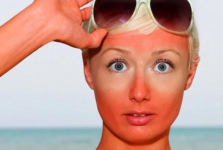 sun, sunburn, skin, cancer, suntan lotion