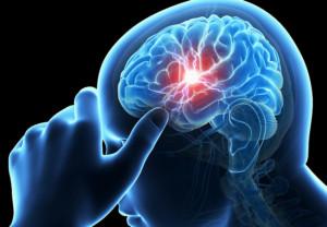 stroke, health, headache, medical