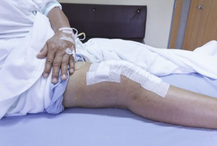 16567482 - knee replacement surgery after operation patient senior woman (60s) on the bed in hospital