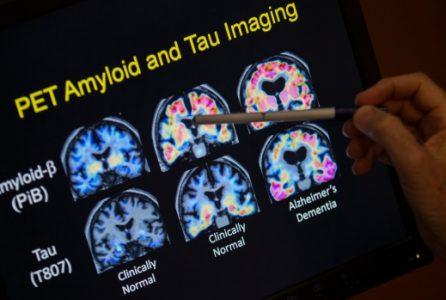 Alzheimer's, Alzheimer